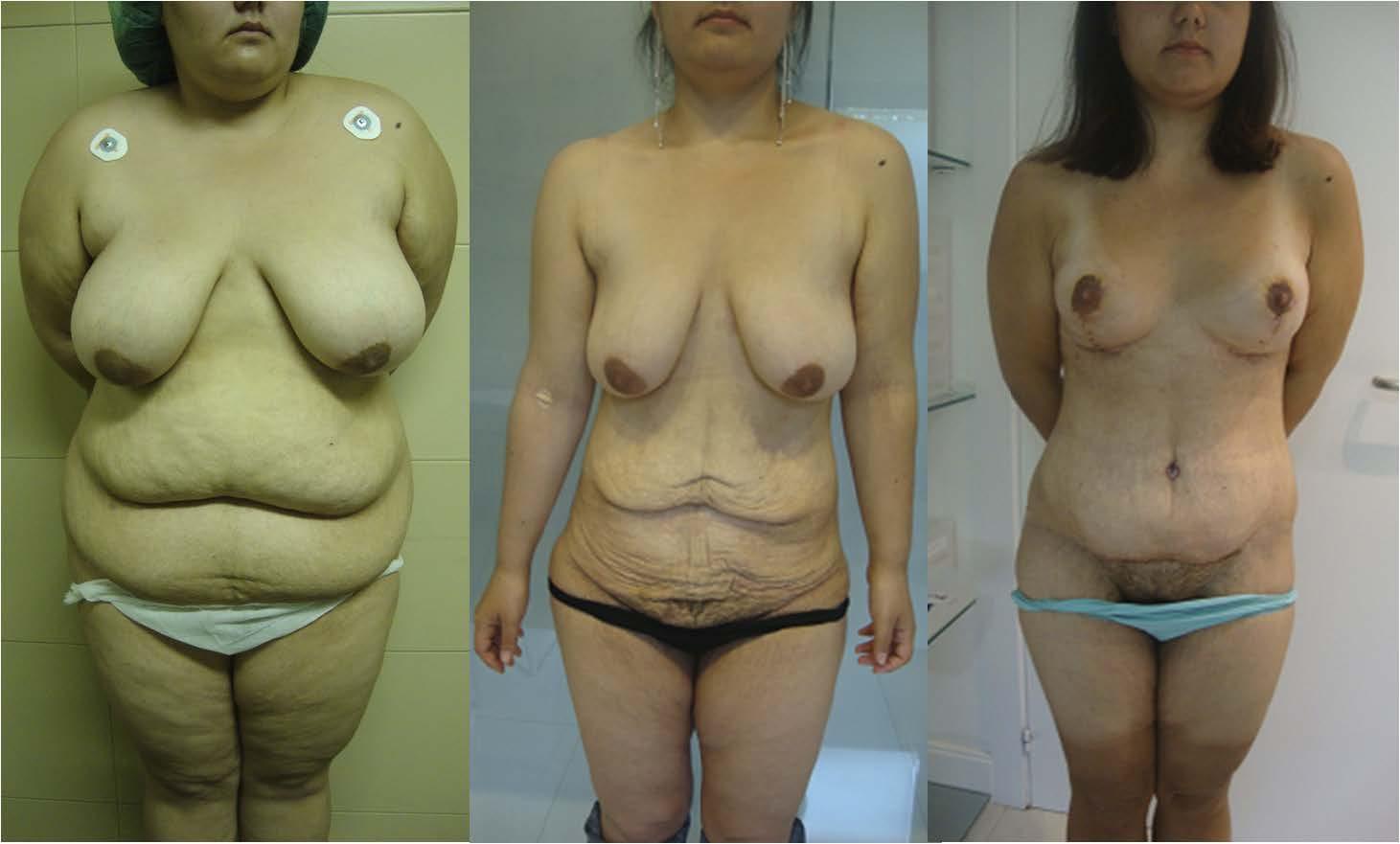 Funciona el agua de chia para bajar de peso hipotiroidismo Hashimoto