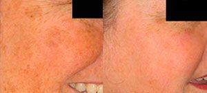 Laser skin rejuvenation - Picture 7