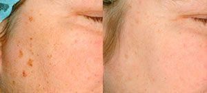 Laser skin rejuvenation - Picture 8