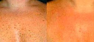 Laser skin rejuvenation - Picture 5