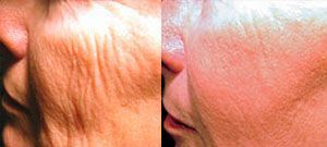 Laser skin rejuvenation - Picture 1
