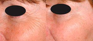 Laser skin rejuvenation - Picture 3