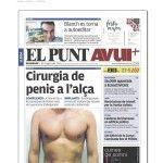 Noticia sobre la cirugía de alargamiento de pene. Diario El Punt Avuí (agosto, 2015).