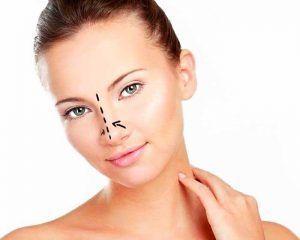 Rinoplastia, cirugía de la nariz