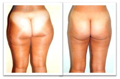liposuccion en piernas precios