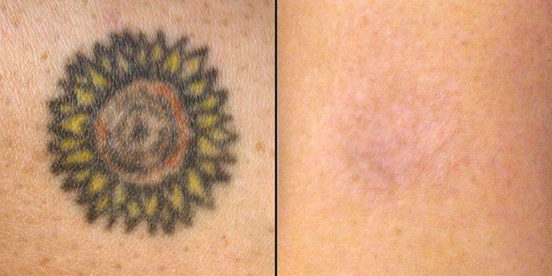 fuera tatuajes antes y despues barcelona
