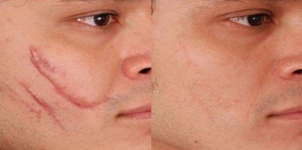 Eliminación de cicatrices con cirugía plástica