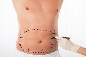 liposuccion de abdomen y espalda