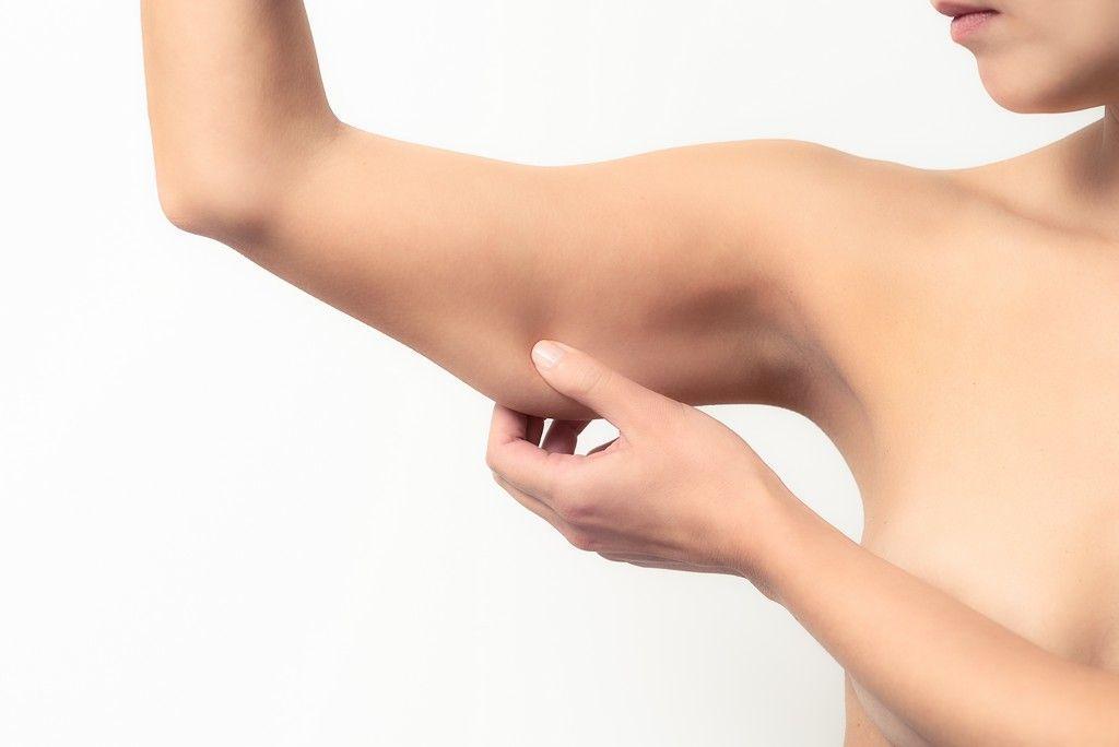 lipolaser de brazos