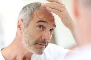 Microinjertos de cabello