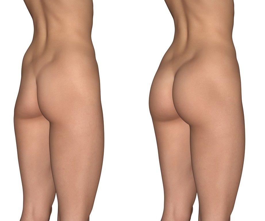 aumento de gluteos con protesis