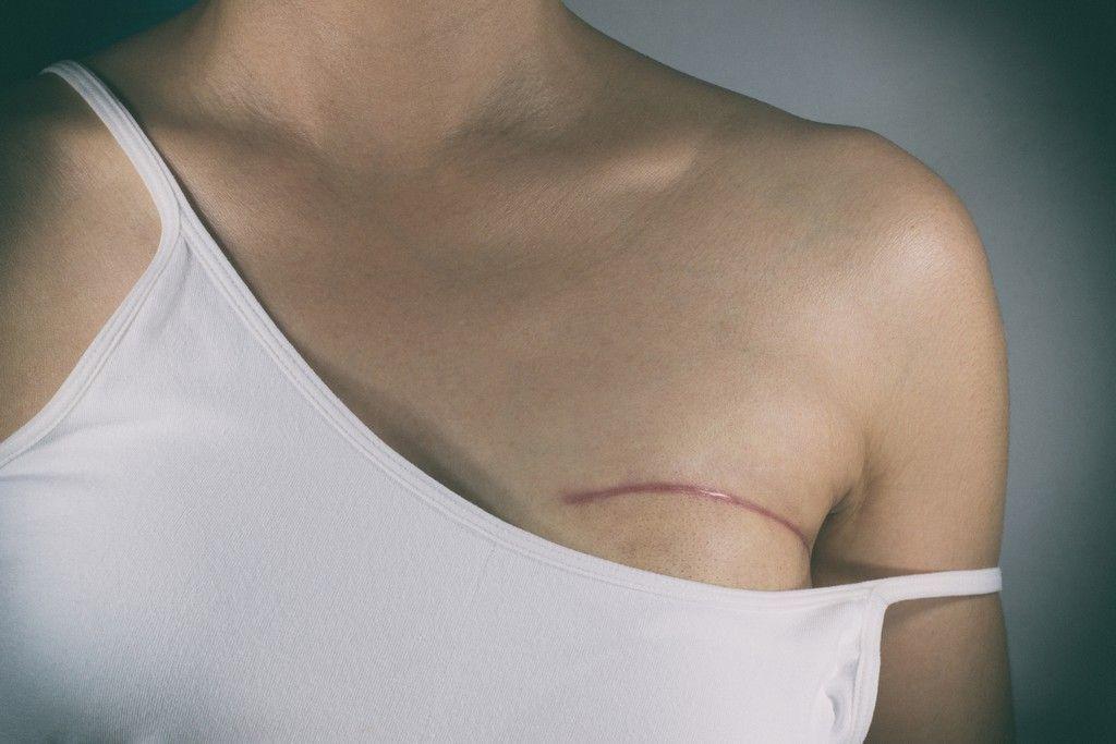 mamas, reconstrucción mamaria