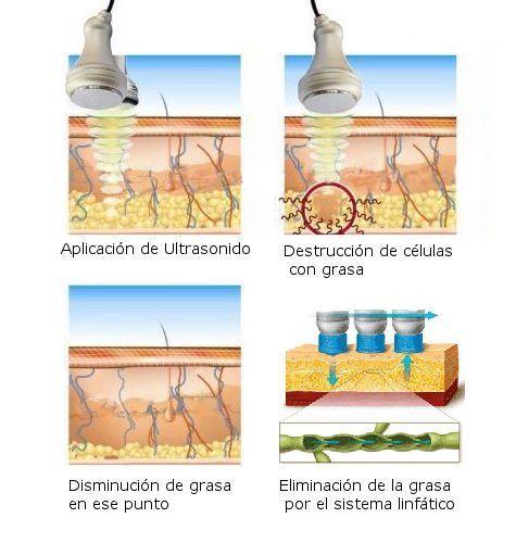 Cavitación, radiofrecuencia y vacumterapia y drenaje linfático