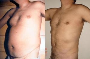 súper liposucción caso 4