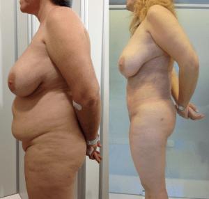 súper liposucción - megaliposucción - paciente 2