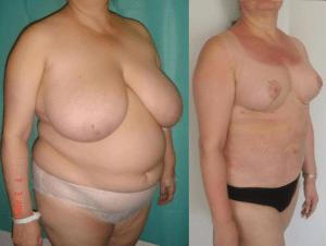 súper liposucción - megaliposucción - paciente 3