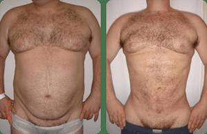súper liposucción caso 1