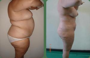 súper liposucción - megaliposucción - paciente 1