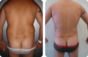 súper liposucción caso 2