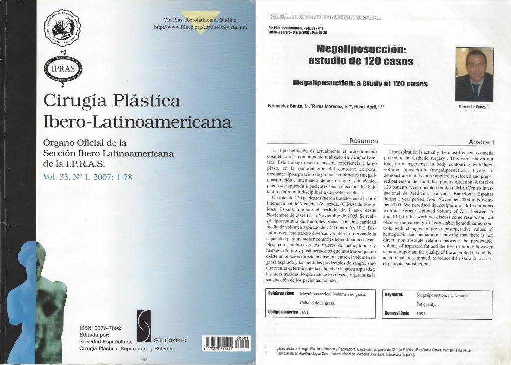 Publicació Dr. Sanza sobre megaliposuccions