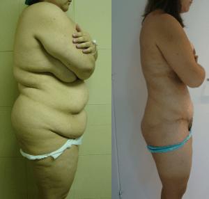 super liposucción - megaliposucción - caso 1