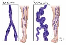 varicose vein treatments