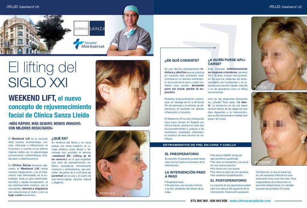 Rejuvenecimiento facial en Barcelona