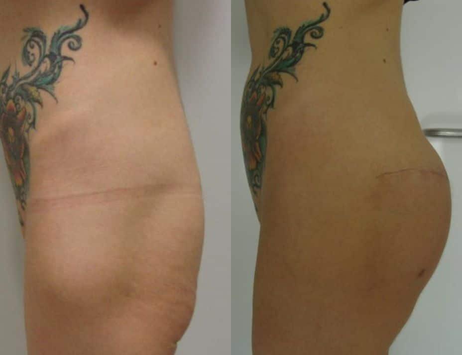 Aumento de glúteos con prótesis - foto 2