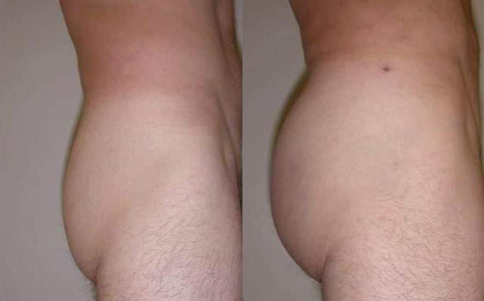 Aumento de glúteos con prótesis - foto 3
