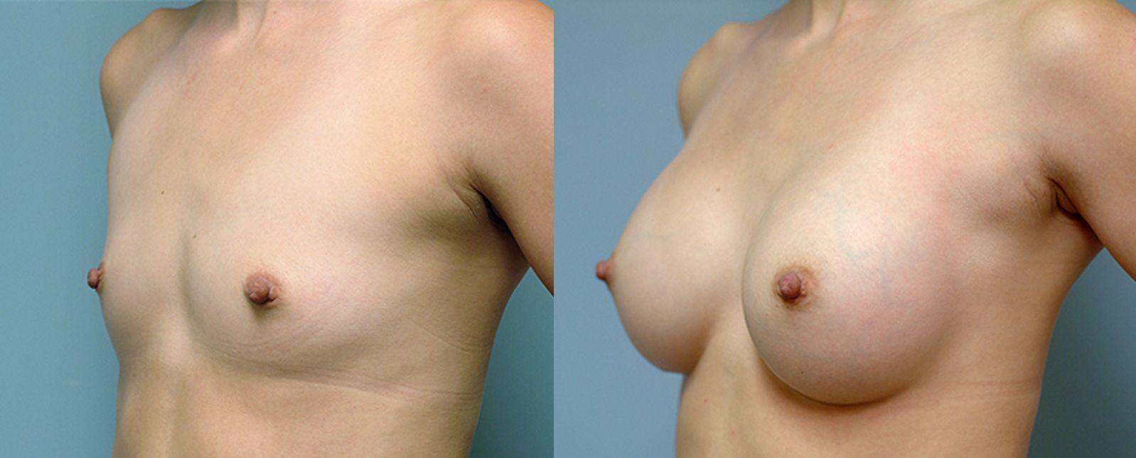 Augment de mames amb pròtesi - Foto 4