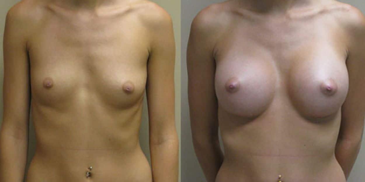 Augment de mames amb pròtesi - Foto 2
