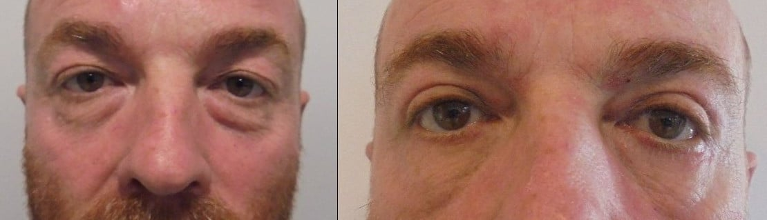 Blepharoplasty, eye bags - Picture 4