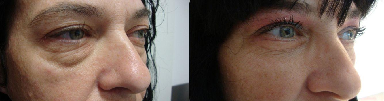 Blefaroplastia, bolsas en los ojos - foto 5