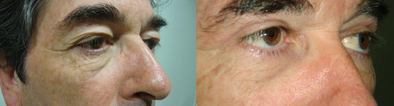 Blefaroplastia - parpados - exceso de piel en los parpados 1