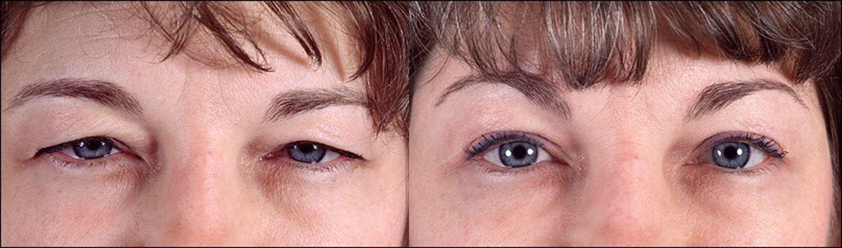 Blefaroplastia - parpados - exceso de piel en los parpados 2