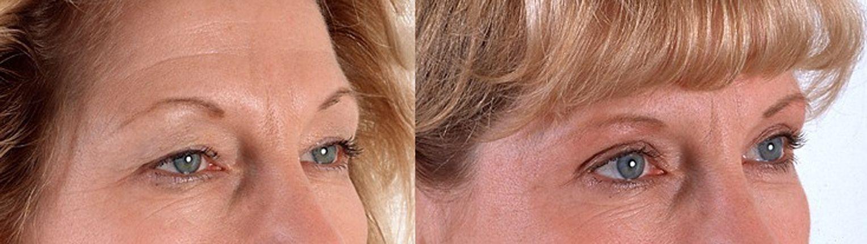 Blefaroplastia - parpados - exceso de piel en los parpados 3