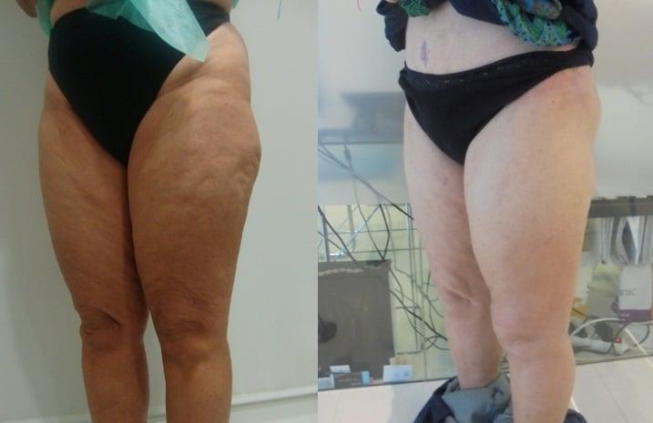 Celulitis y liposucción de gluteos
