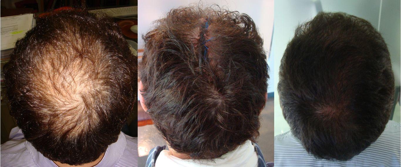 Lifting de cuero cabelludo