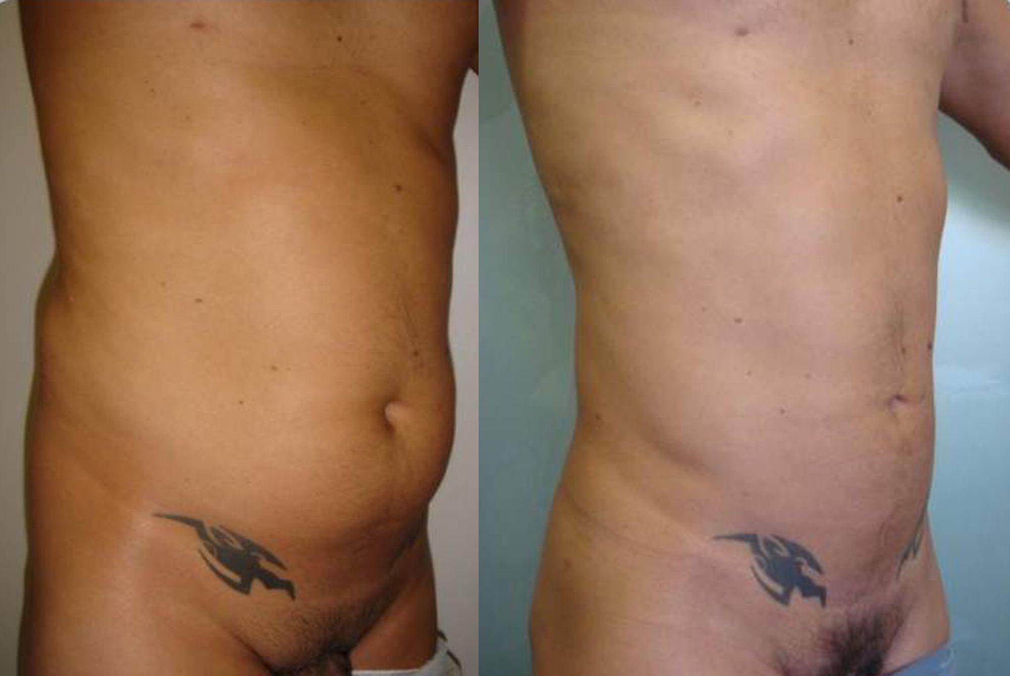Liposucción de abdomen - foto 1