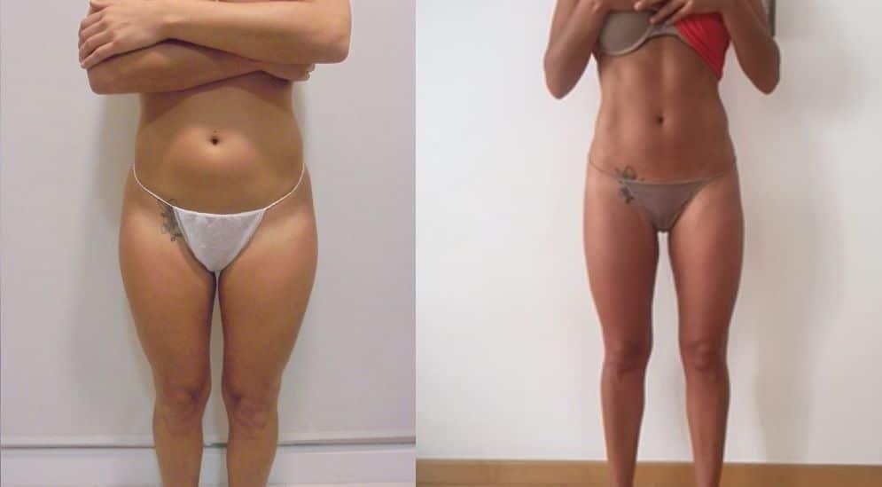 Liposucción de abdomen - foto 2