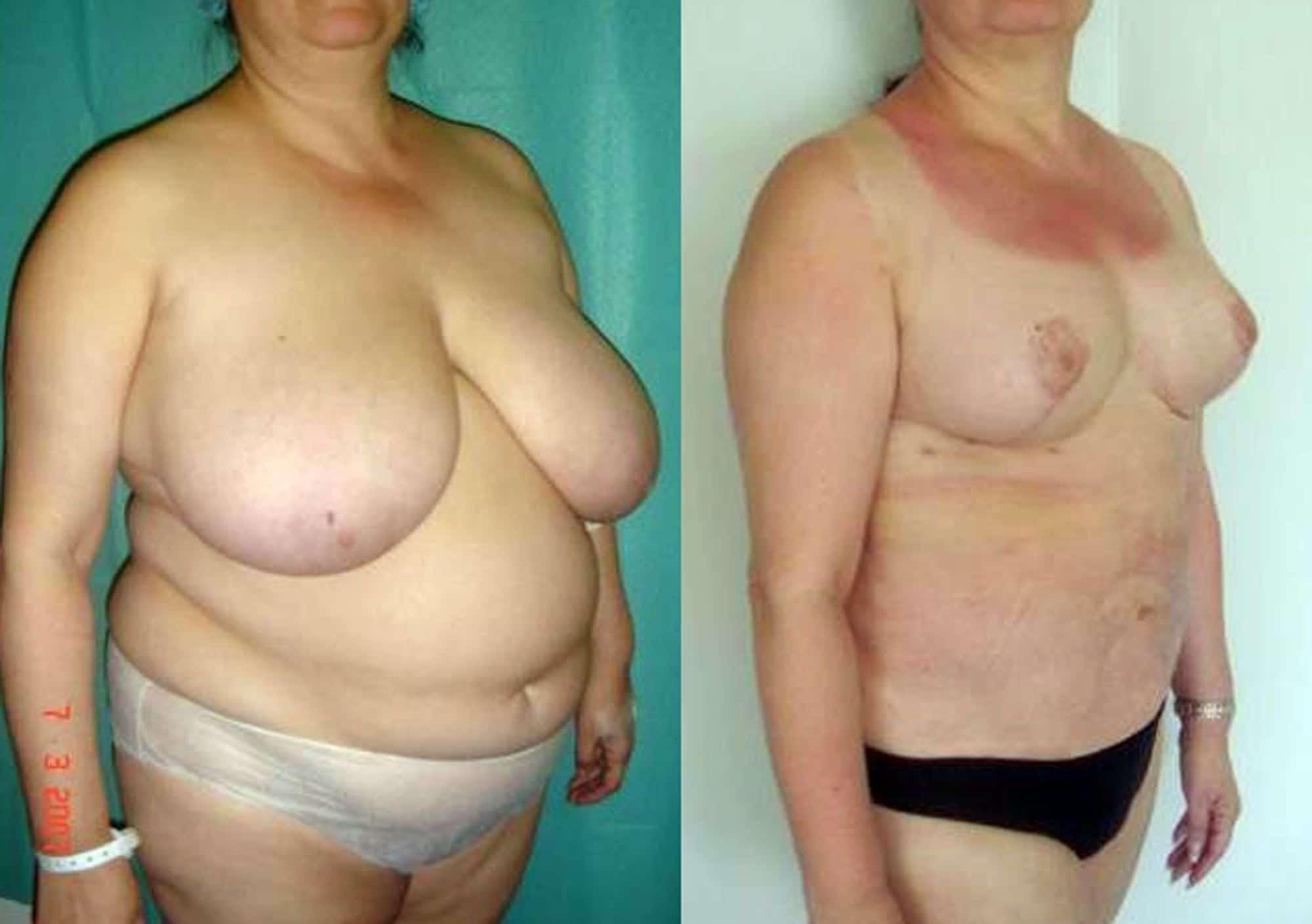 Liposucción de abdomen - foto 5