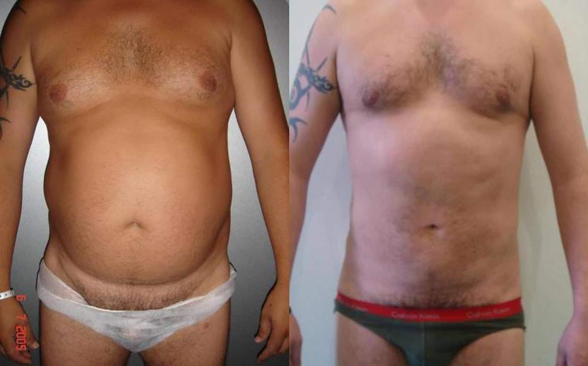 Liposucción de abdomen - foto 6