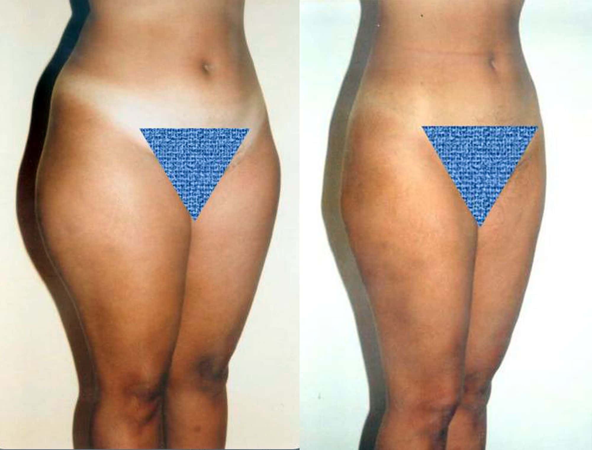 Leg liposuction - Picture 3