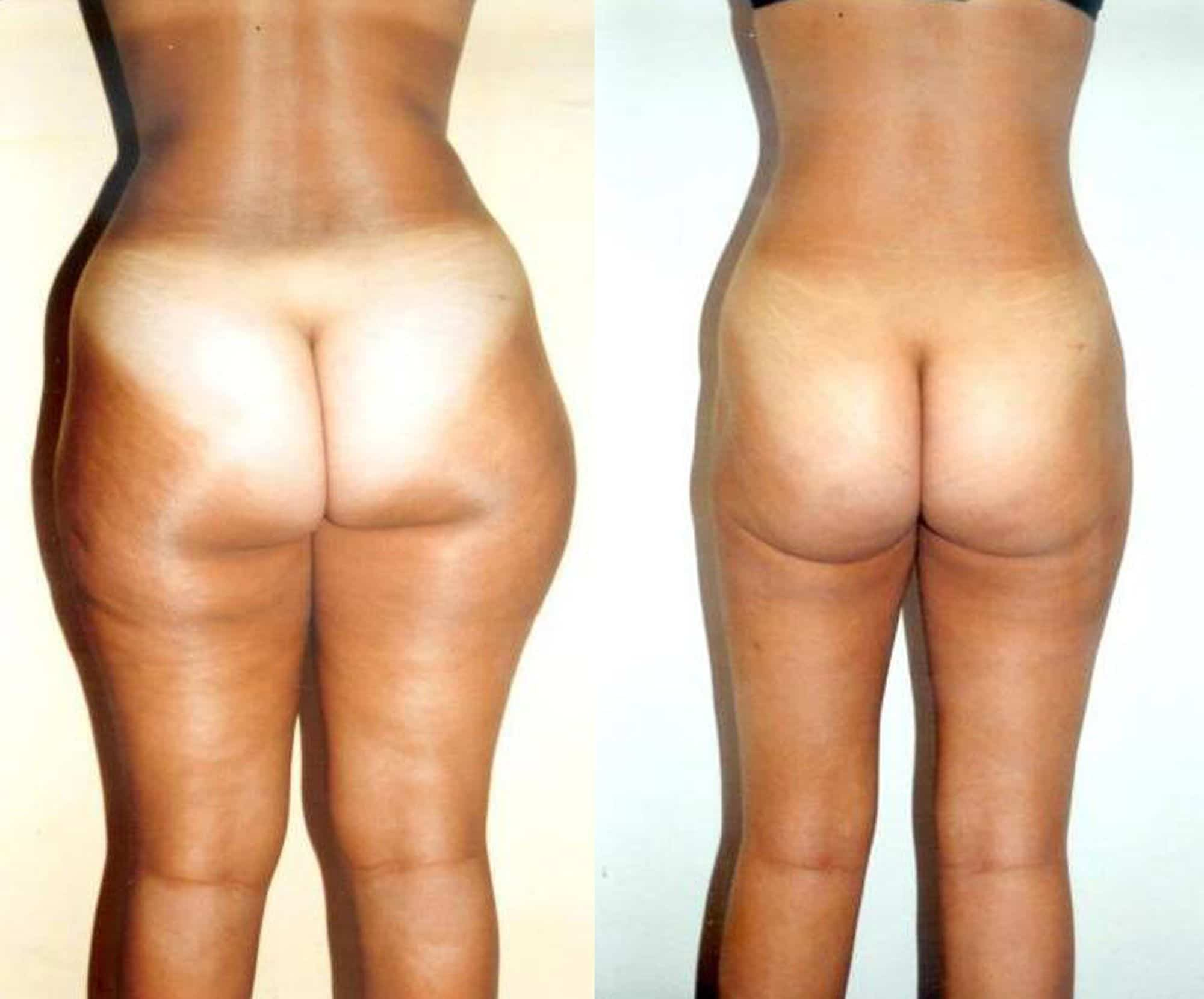 Leg liposuction - Picture 4