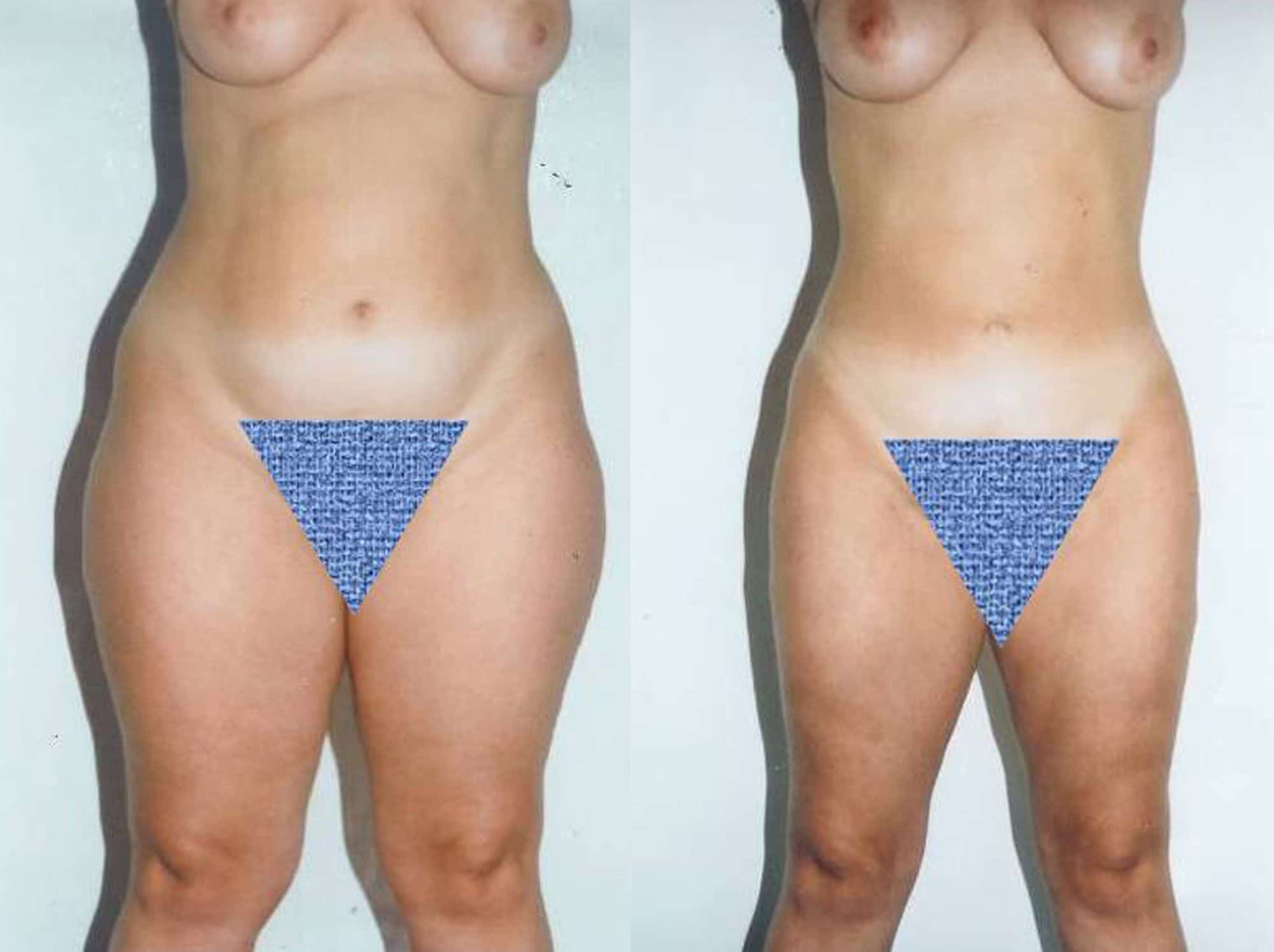 Leg liposuction - Picture 1
