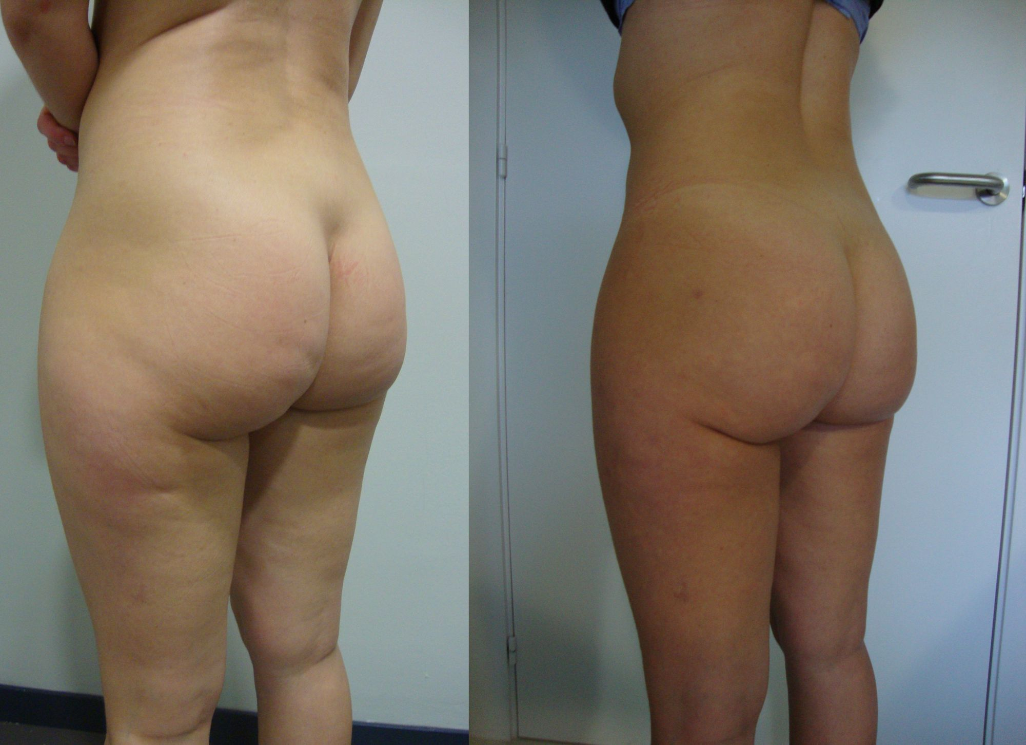Leg liposuction - Picture 2