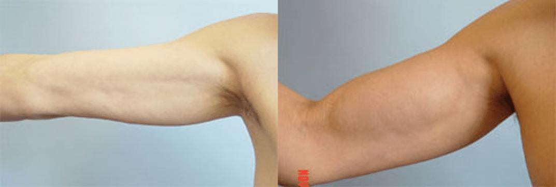Pròtesi de bíceps - Foto 5