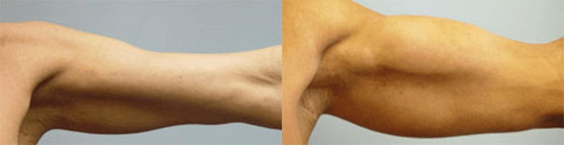 Pròtesi de bíceps - Foto 2