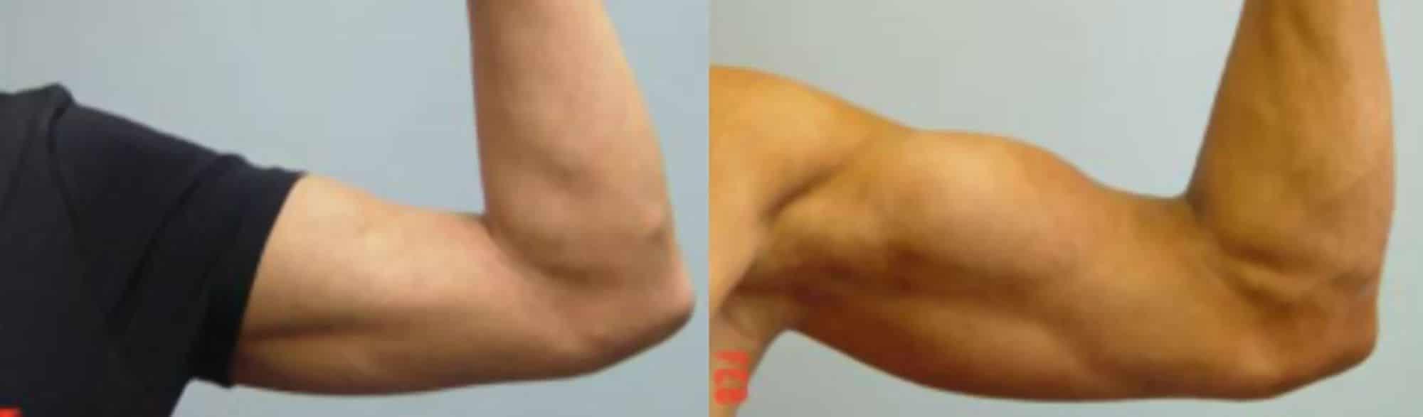 Pròtesi de bíceps - Foto 3
