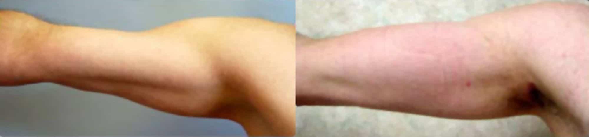 Pròtesi de bíceps - Foto 4